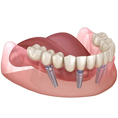 all on 4 dental implants cost in Aurora